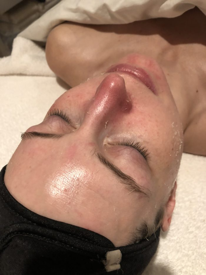 Facial With Blondies Beauty Salon Denver